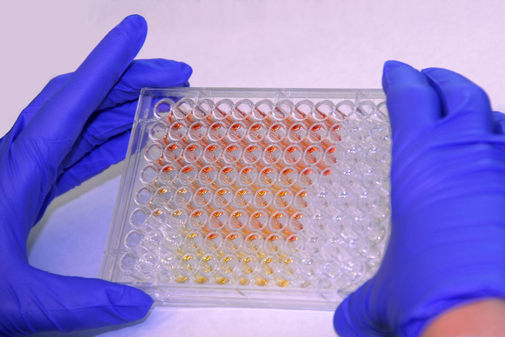 Protein Assay